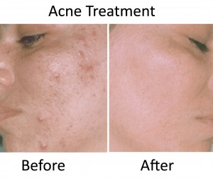 CACI acne treatment before & after - PHOTO