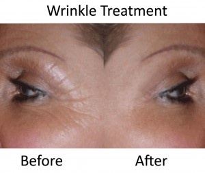CACI Wrinkle Treatment, befor & after - PHOTO