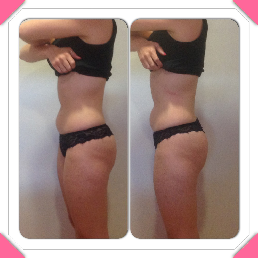 Liposculpt results -side 1 - PHOTO