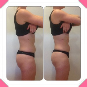 Liposculpt results - side 2 - PHOTO