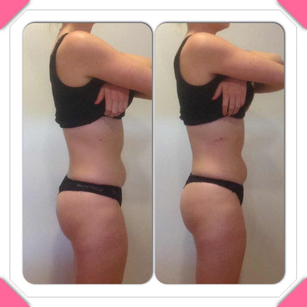 Liposculpt results side 2