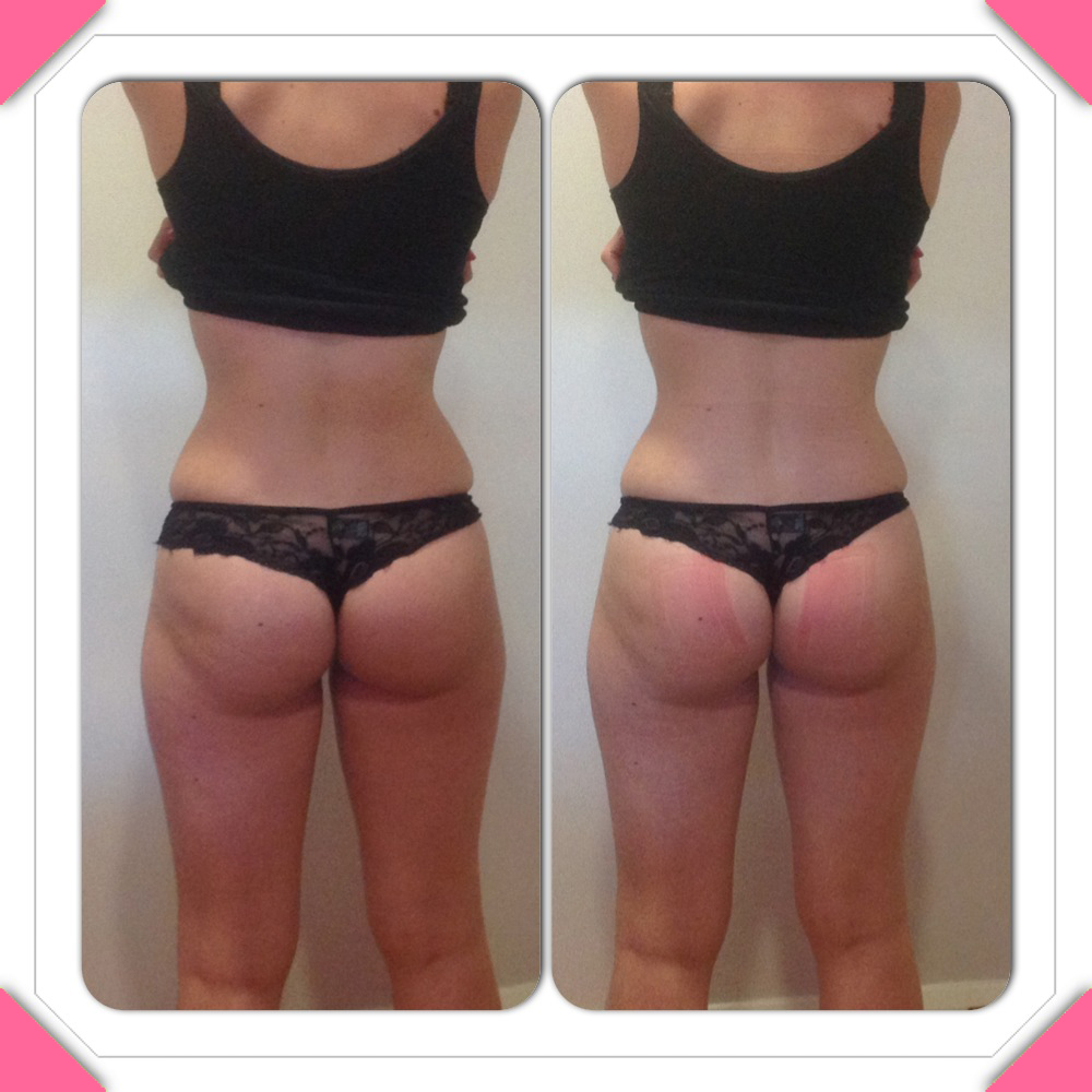 Liposculpt results - back - PHOTO